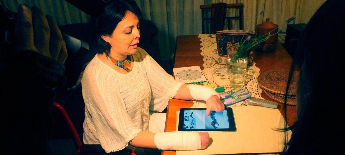 La historia de Leonor: Cerró los ojos y tres meses después despertó sin sus extremidades